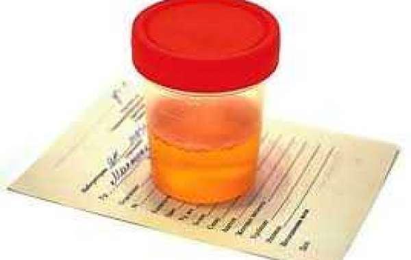 Orange semen သုက်ရည်ဝါနေခြင်း