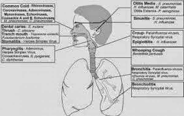 Respiratory tract infections (1) အသက်ရှူလမ်း ပိုးဝင်ခြင်း (၁)