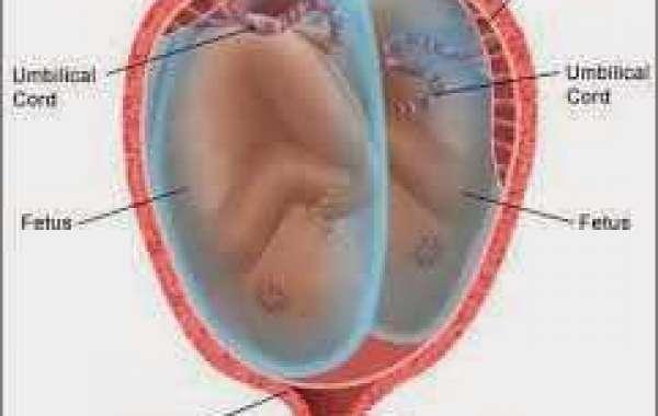Twin Pregnancy (2) အမြွာကိုယ်ဝန် ဘာဆင်ခြင်ရမလဲ