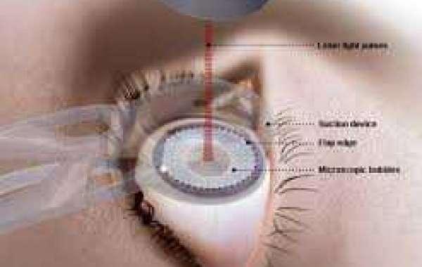 Laser Eye Operation လေဆာနဲ့ မျက်မှန်မလိုအောင်လုပ်ခြင်း